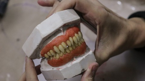 CURSO DE PROSTETICOS DENTALES. Aprende a hacer dentaduras fantasticas